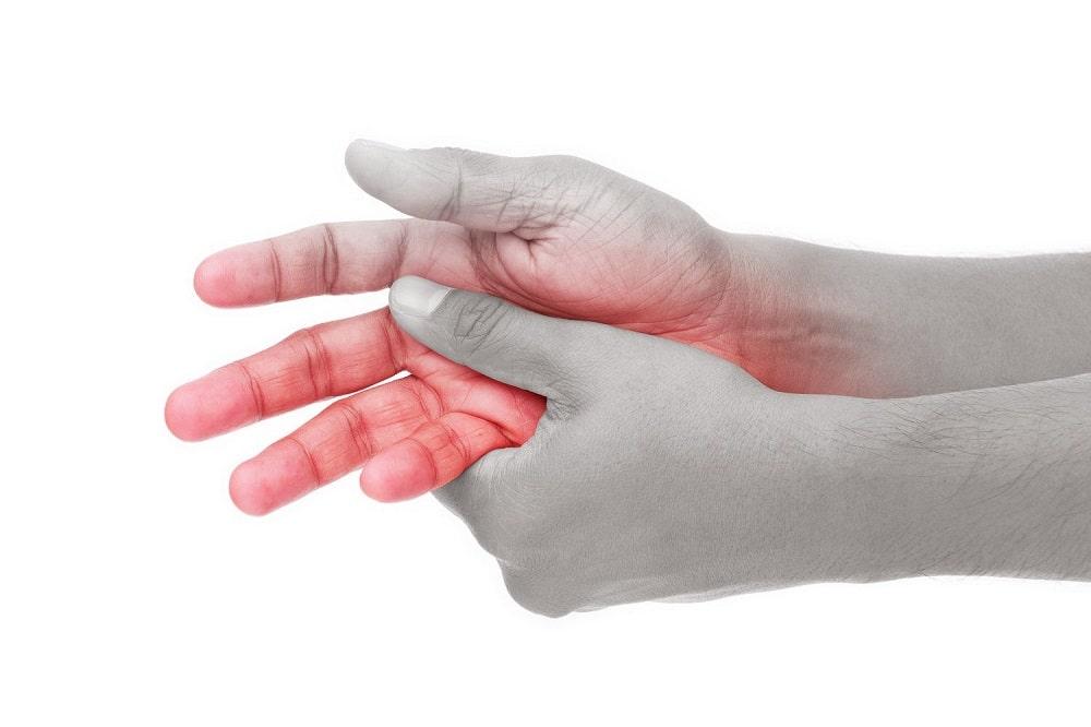 Complex Regional Pain Syndrome CRPS