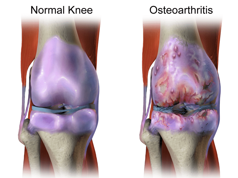Normal Knee vs Osteoarthritis - Newcastle Research Institute - Genesis Research Services