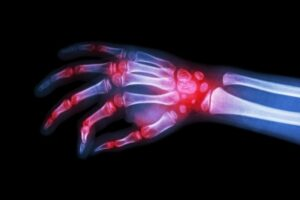 Rheumatoid Arthritis Hand - Newcastle Research Institute - Genesis Research Services