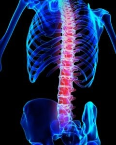 Spondyloarthritis - Image courtesy of yodiyim at FreeDigitalPhotos.net