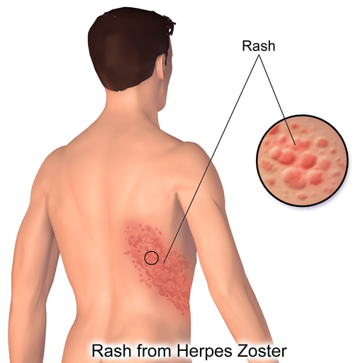 Herpes Zoster Rash - Postherpetic Neuralgia - Postherpetic Neuralgia - Course of Shingles - Postherpetic Neuralgia - Vaccination - Postherpetic Neuralgia - Clinical Trials - Newcastle Research Institute - Genesis Research Services