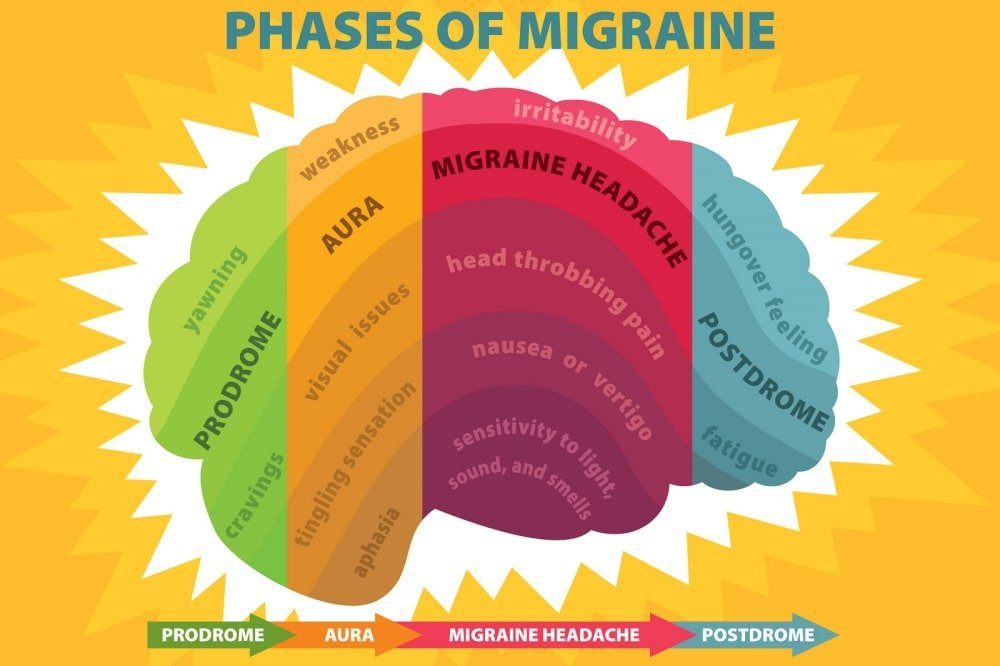 Migraine Phases - Newcastle Research Institute - Genesis Research Services