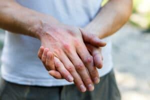 Psoriatic Arthritis - Diagnosis, Symptoms, Treatment, Clinical Trials