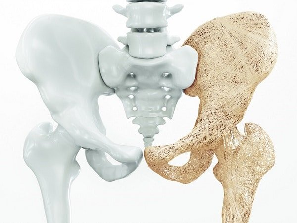 Research study for women with osteoporotic fracture
